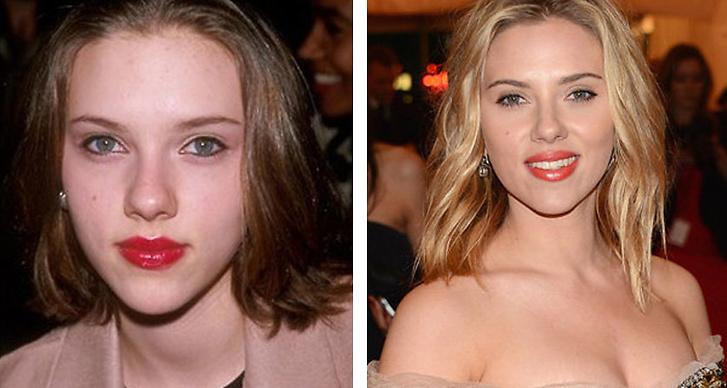 1. Scarlett Johansson: Ser inte stjärnans näsa ut att förändrats en aning för mycket på den senaste tiden?